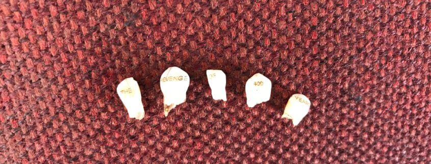 The Revenge of 400 Years is Only Losing its Baby Teeth (work in progress) 2017 Baby teeth, gold leaf, child's slipper